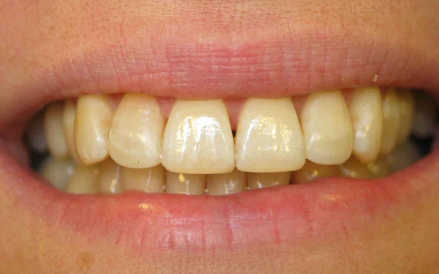 Orthodontics - Inman Aligner - Case 7