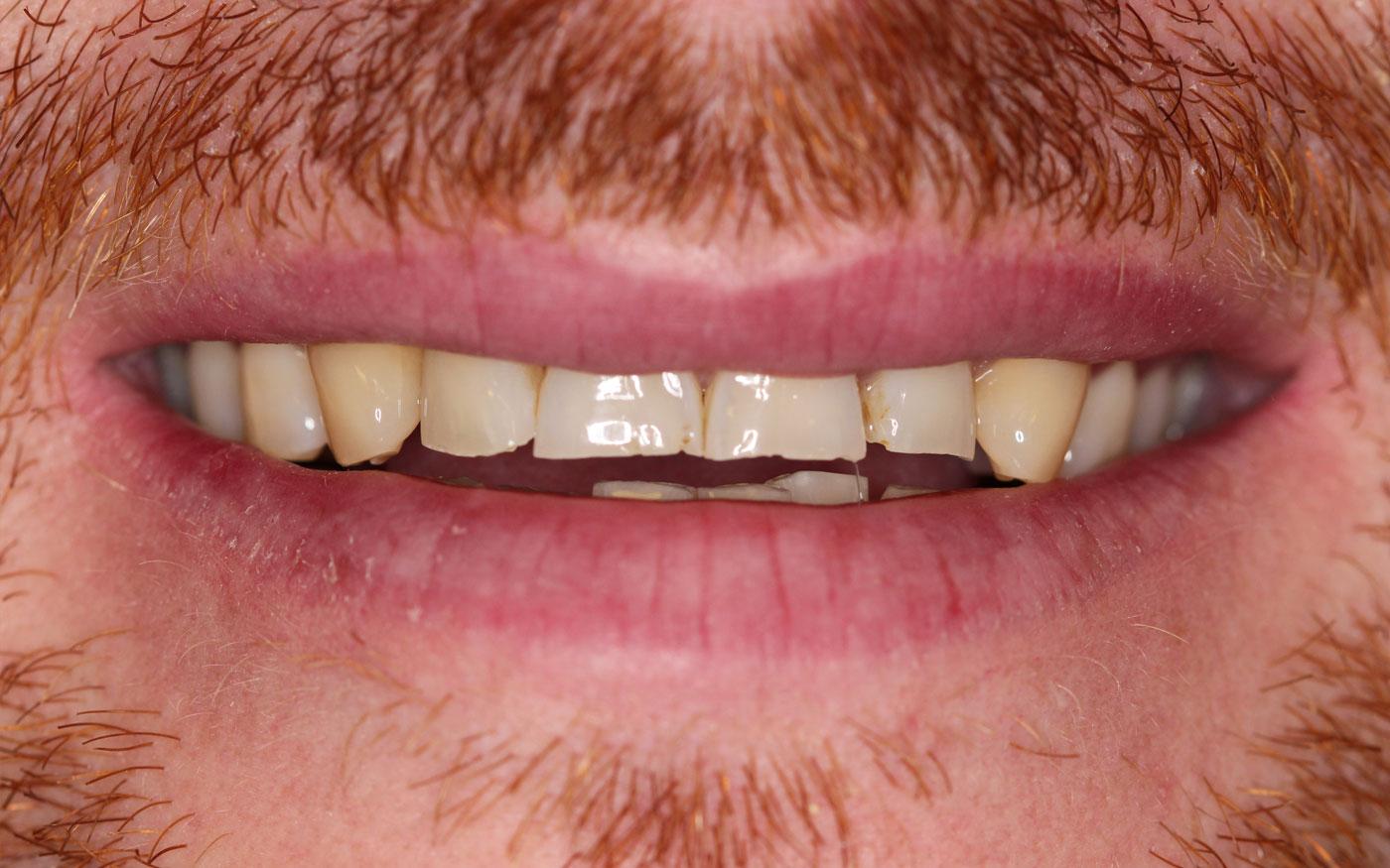 Orthodontics - Clear Aligner & Crowns - Case 3