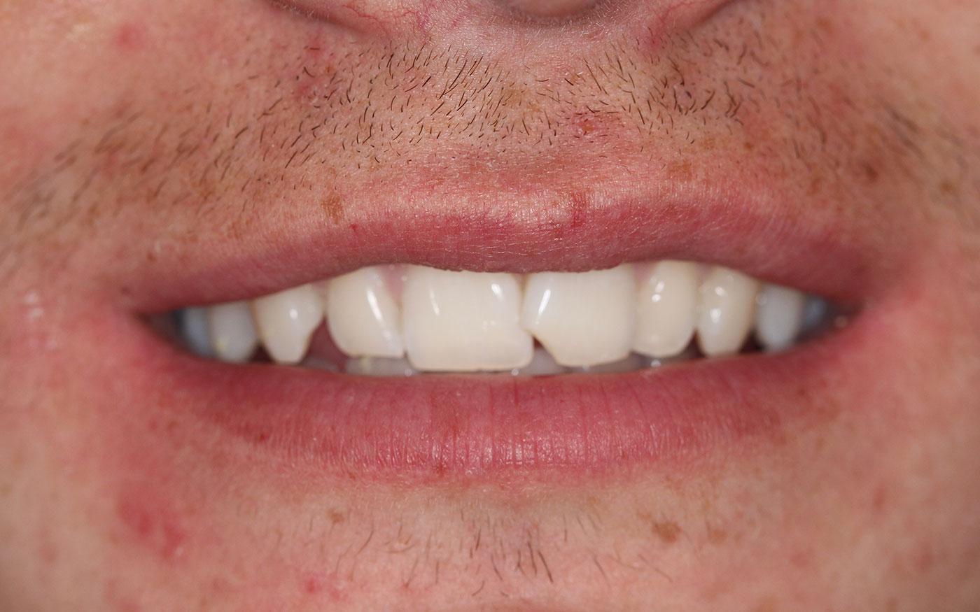 Orthodontics - Clear Aligner - Case 1