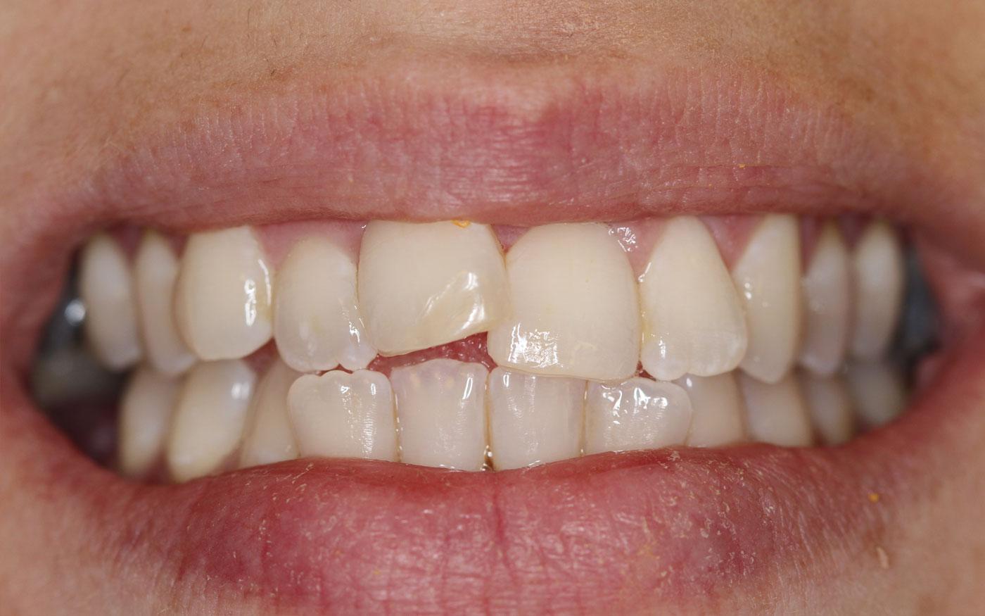 Orthodontics - Clear Aligner - Case 2