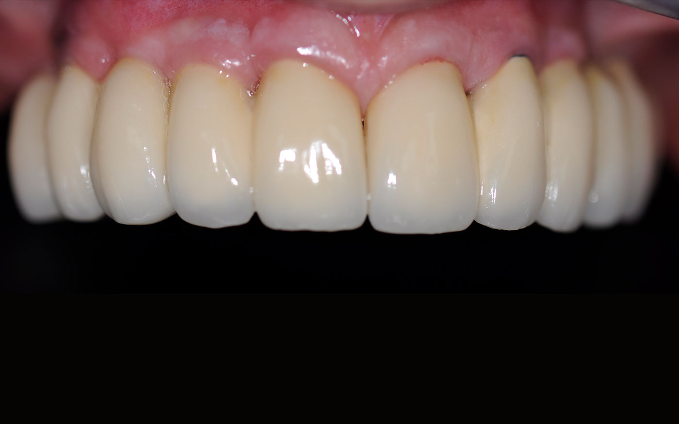 Loose upper denture replaced with fixed in dental Implants
