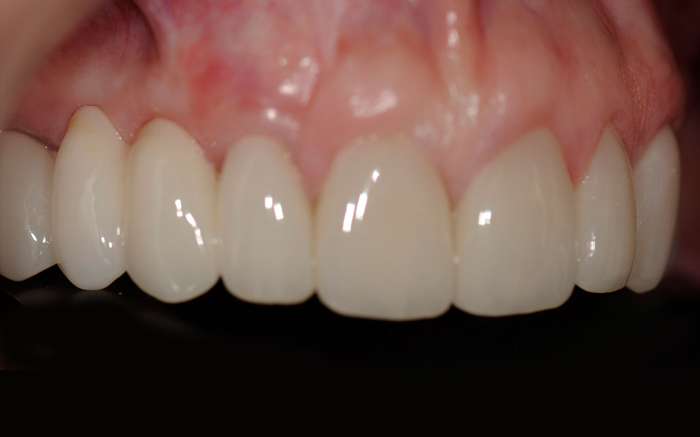 Gum treatment to cover receding gums combined with replacement of old crowns and a denture with dental Implants and crown restoration