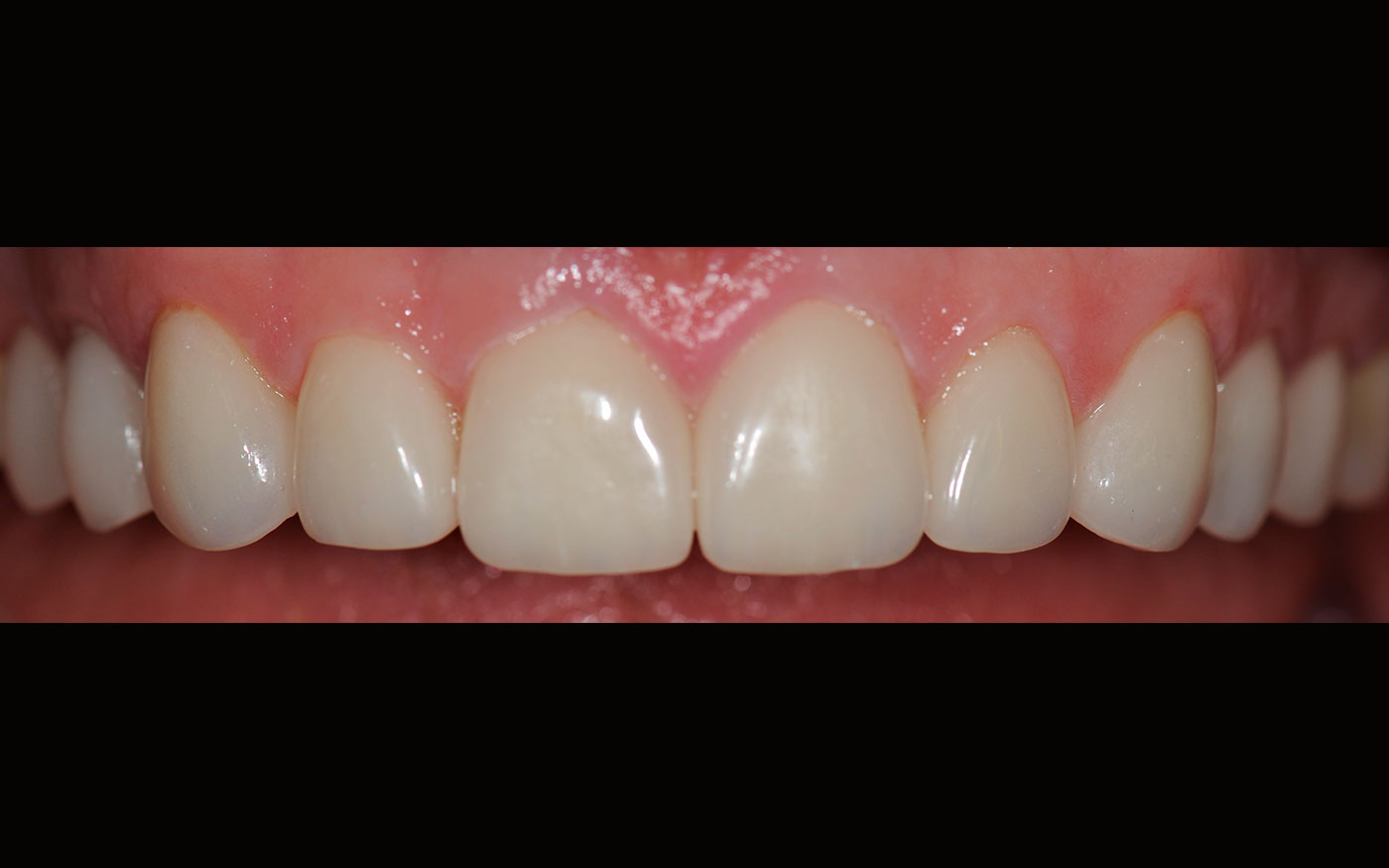 Crooked, discoloured teeth replaced with 10 perfect porcelain veneers