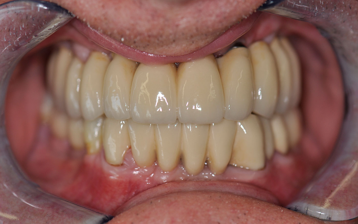 Loose dentures and failing teeth replaced with upper and lower dental Implants with fixed Implant bridgework